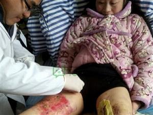 请大家救救我的腿,我还有一个13岁的女儿和4岁的女儿要养