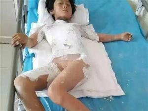 白山湾沟女孩严重烧伤,家庭困难恳请白山人民帮助!