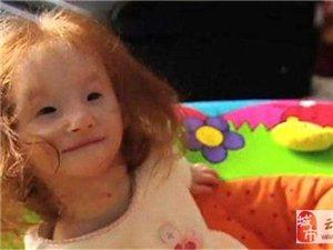 出生25CM被诊断活不到1岁的拇指姑娘 12岁了!