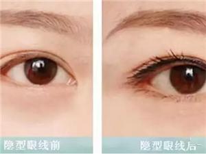 做美瞳�的意�x,完美你的眼睛!