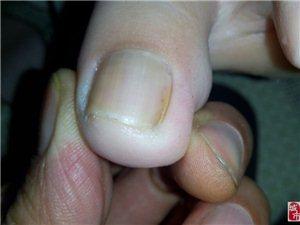 脚趾甲长在肉里痛《常氏养生堂》一刀解决有图