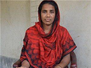 孟加拉一女子因患罕见病 右手肿成足球大小(图)