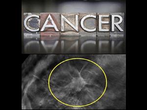 癌症筛查技术发展情况
