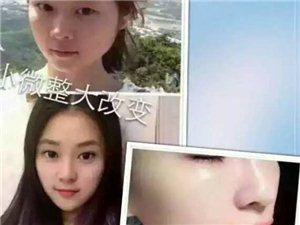 v+美工作室韩国学习玻尿酸填充鼻子,下巴,太阳穴,嘟嘟唇