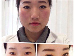 嘉美医疗整形瘦脸针对比照